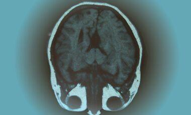 AL-illu-Gehirn-MRT-c-Monika-Torloxten_pixelio (jpg)